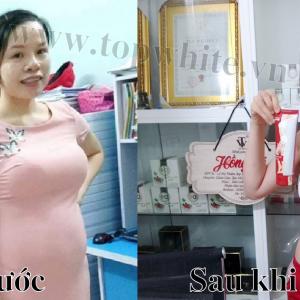 Mẹ bỉm sữa giảm 20kg, về lại dáng như thời con gái nhờ bộ đôi thần thánh này