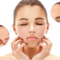 4 nguyên nhân gây mụn thường gặp ở quý cô da khô